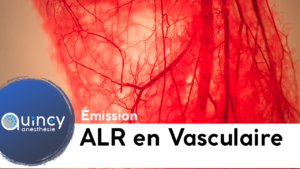 ALR en chirurgie Vasculaire