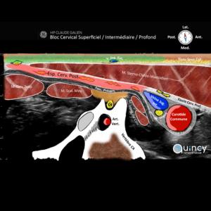 Echographie bloc cervical