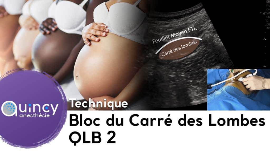 technique QLB 2