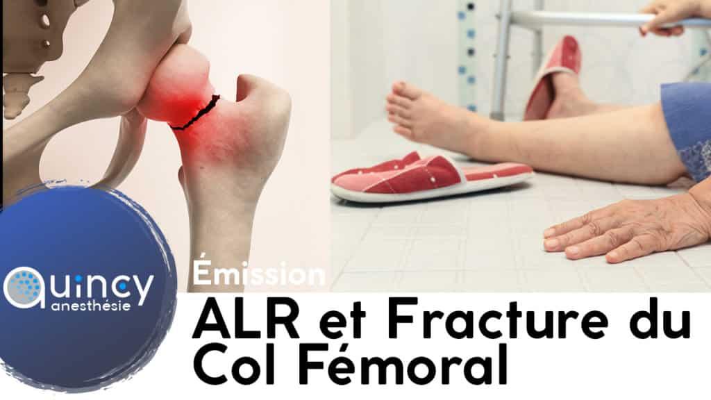 Emission ALR fracture du col fémoral